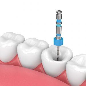 Curso de Endodontia para Médicos Dentistas