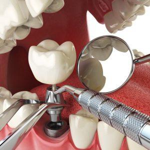 Curso de Próteses sobre Implantes para Médicos Dentistas
