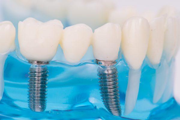 Curso de Implantologia para Médicos Dentistas
